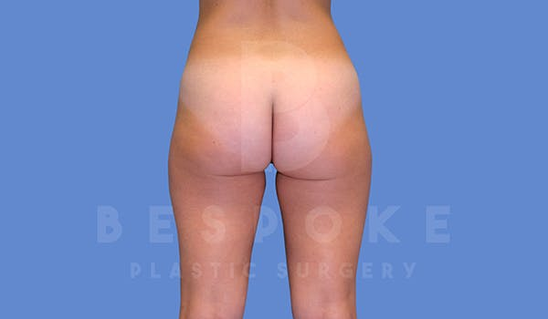 Liposuction Gallery - Patient 5776245 - Image 3