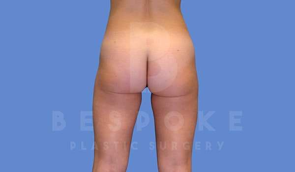 Liposuction Gallery - Patient 5776245 - Image 4