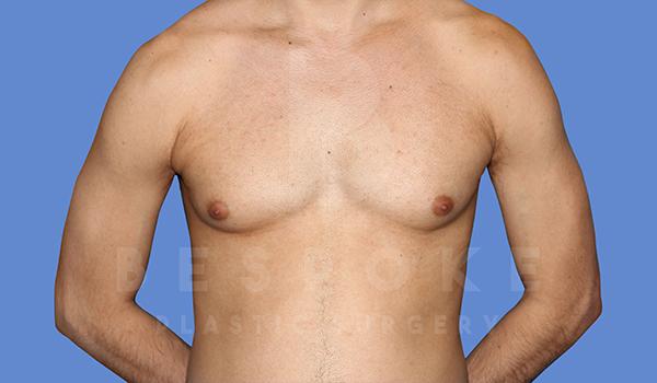 Gynecomastia Gallery - Patient 5776248 - Image 5