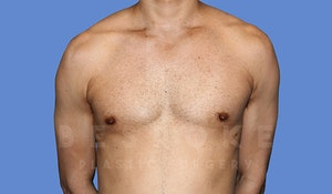 Before & After Male Breast Reduction Charlotte NC