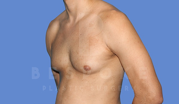 Gynecomastia Gallery - Patient 5776248 - Image 3