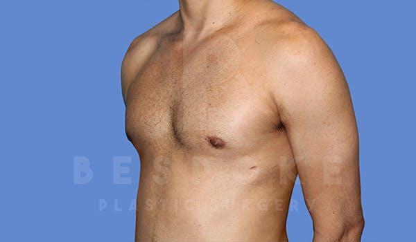 Gynecomastia Gallery - Patient 5776248 - Image 4