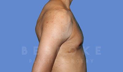 Gynecomastia Gallery - Patient 5776248 - Image 6