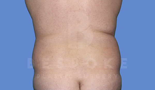 Liposuction Gallery - Patient 5776250 - Image 3