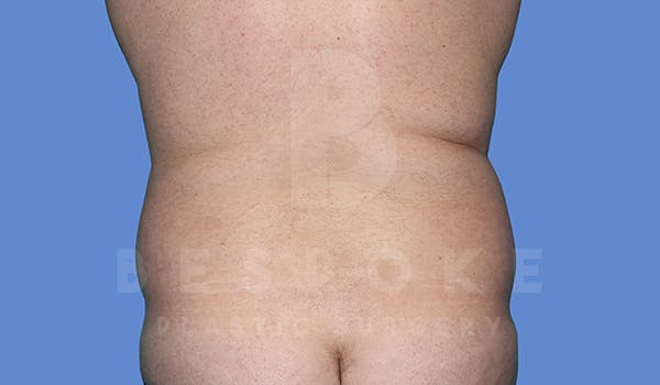 Liposuction Gallery - Patient 5776250 - Image 1