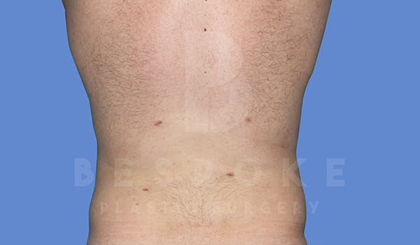 Liposuction Gallery - Patient 5776250 - Image 2