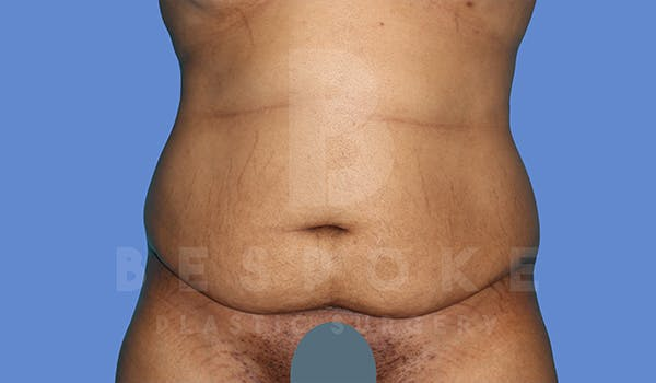 Massive Weight Loss Gallery - Patient 5776251 - Image 1