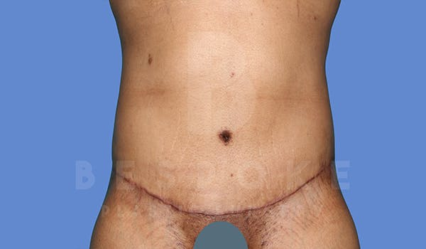 Massive Weight Loss Gallery - Patient 5776251 - Image 2