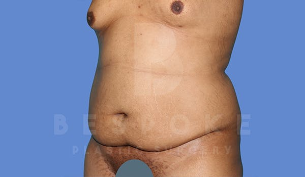 Massive Weight Loss Gallery - Patient 5776251 - Image 3
