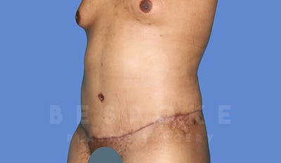 Massive Weight Loss Gallery - Patient 5776251 - Image 4