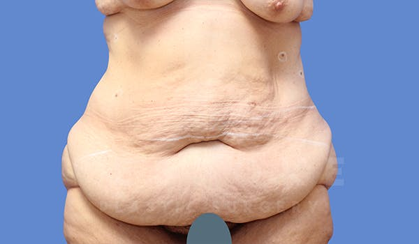 Massive Weight Loss Gallery - Patient 5776253 - Image 1