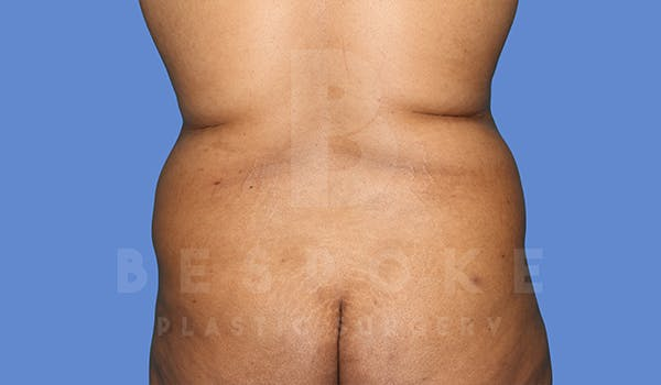 Massive Weight Loss Gallery - Patient 5776251 - Image 5