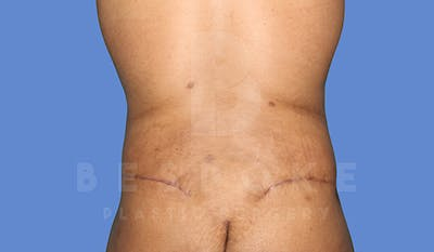 Massive Weight Loss Gallery - Patient 5776251 - Image 6