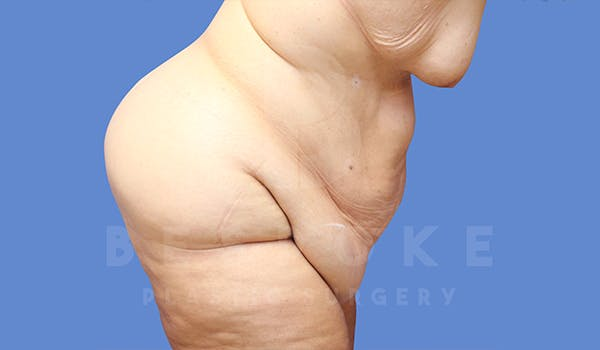 Massive Weight Loss Gallery - Patient 5776253 - Image 3