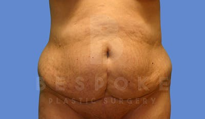 Massive Weight Loss Gallery - Patient 5776254 - Image 1
