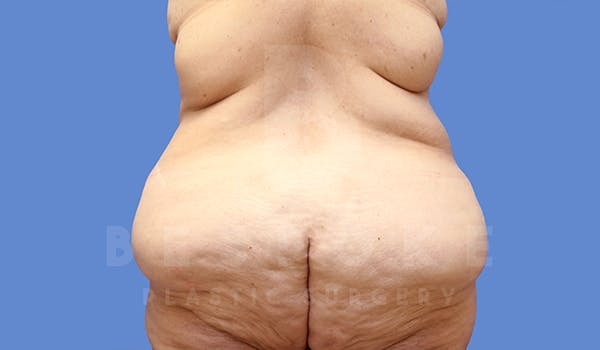 Massive Weight Loss Gallery - Patient 5776253 - Image 5
