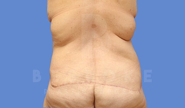 Massive Weight Loss Gallery - Patient 5776253 - Image 6
