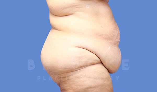 Massive Weight Loss Gallery - Patient 5776253 - Image 7
