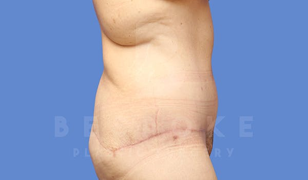 Massive Weight Loss Gallery - Patient 5776253 - Image 8