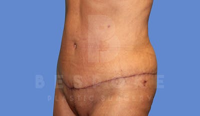 Massive Weight Loss Gallery - Patient 5776254 - Image 4