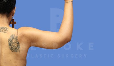 Massive Weight Loss Gallery - Patient 5776256 - Image 2