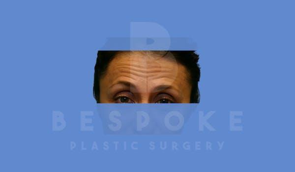 BOTOX/Dysport Gallery - Patient 5776260 - Image 1