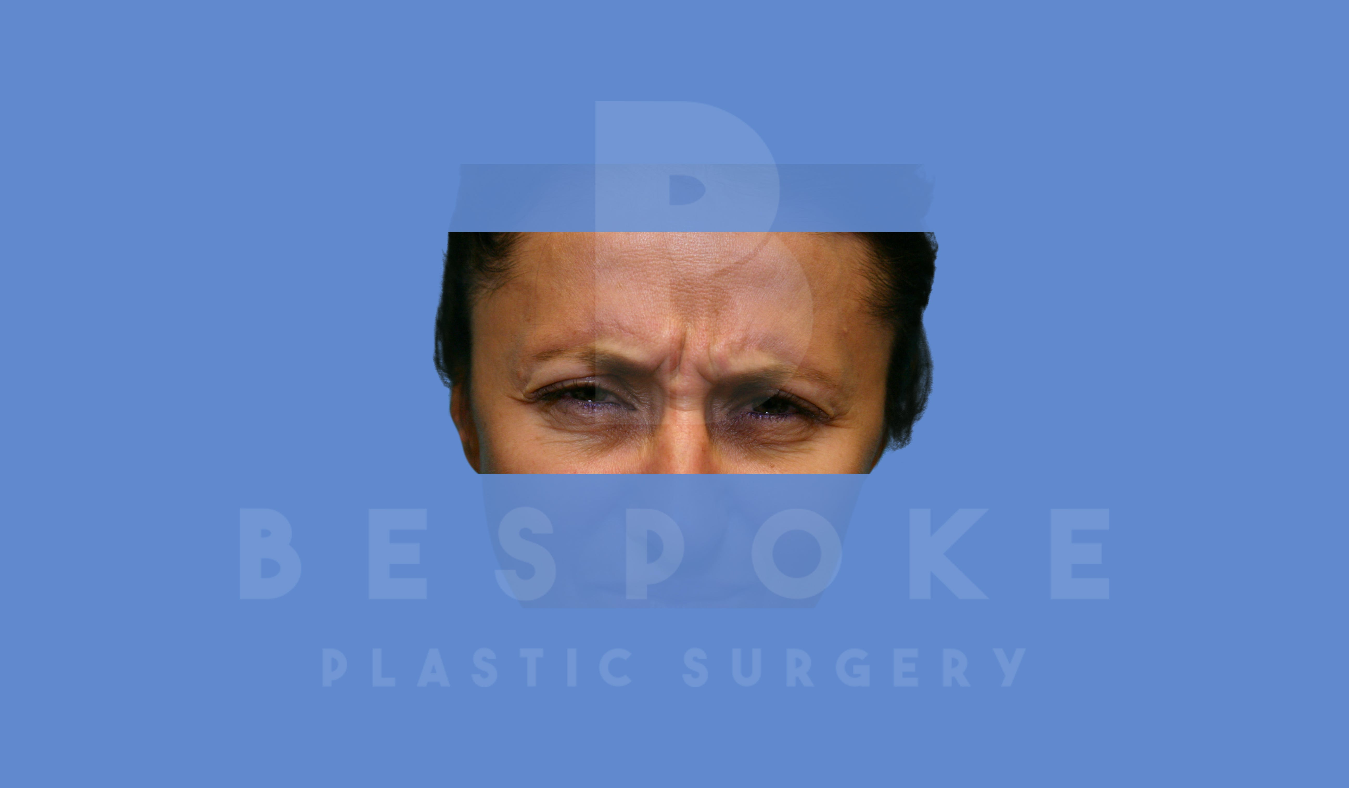 BOTOX/Dysport Gallery - Patient 5776261 - Image 1