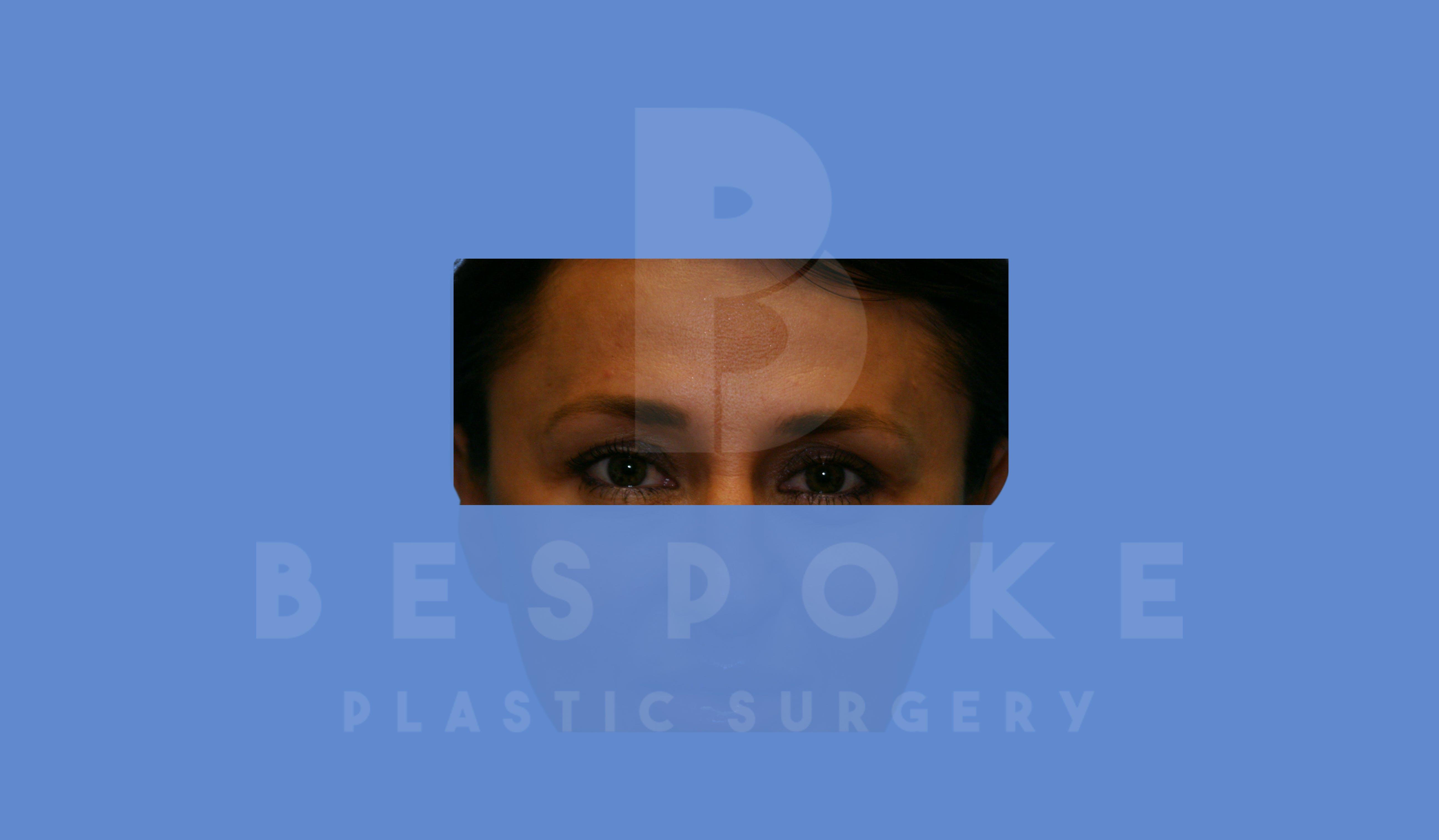 BOTOX/Dysport Gallery - Patient 5776260 - Image 2