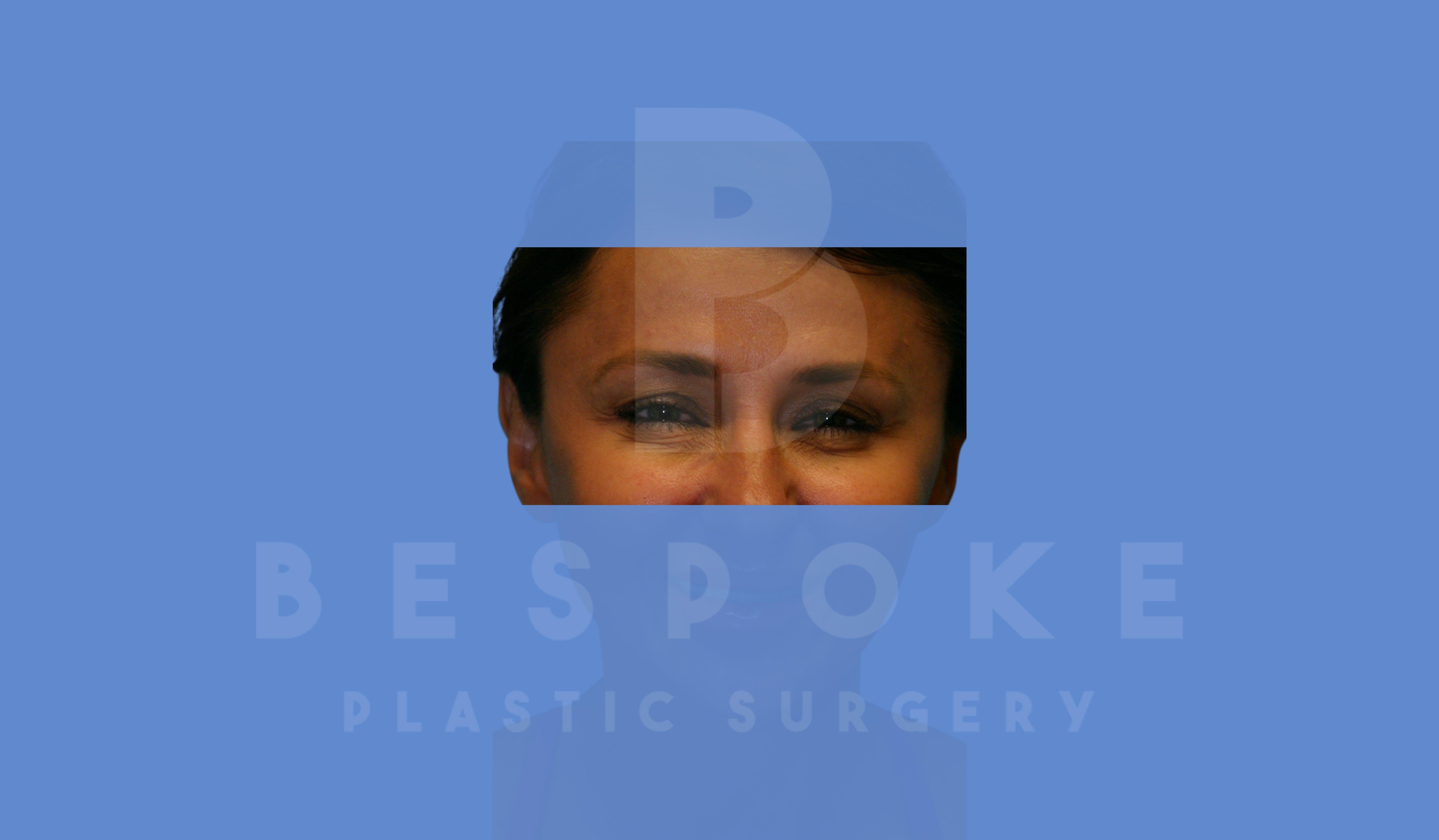 BOTOX/Dysport Gallery - Patient 5776261 - Image 2
