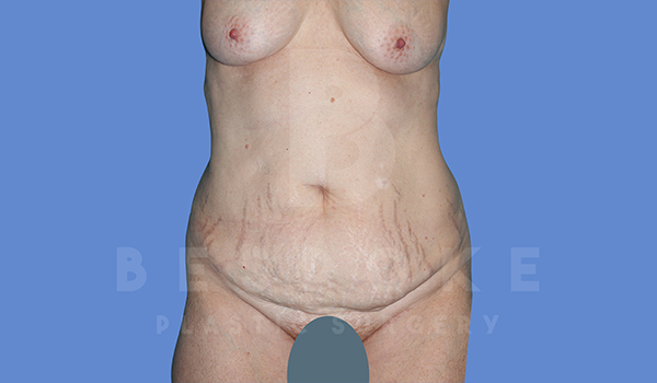 Tummy Tuck Gallery - Patient 5776273 - Image 21