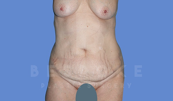 Tummy Tuck Gallery - Patient 5776273 - Image 1