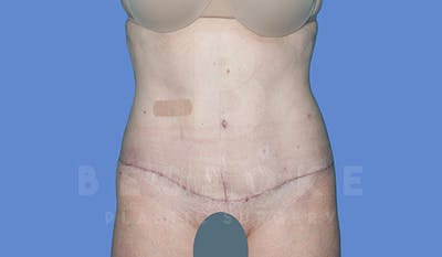 Tummy Tuck Gallery - Patient 5776273 - Image 2