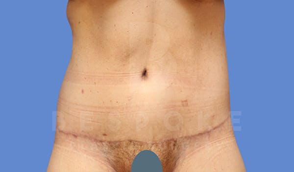 Tummy Tuck Gallery - Patient 5776274 - Image 2
