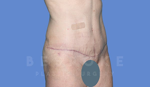 Tummy Tuck Gallery - Patient 5776273 - Image 4