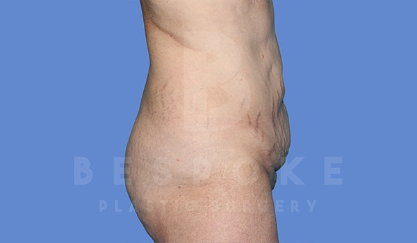 Tummy Tuck Gallery - Patient 5776273 - Image 5