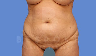 Tummy Tuck Gallery - Patient 5776275 - Image 1