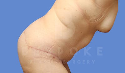 Tummy Tuck Gallery - Patient 5776274 - Image 4
