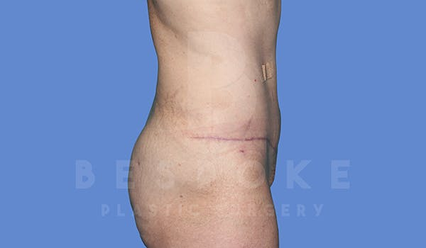 Tummy Tuck Gallery - Patient 5776273 - Image 6