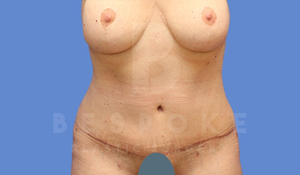 Tummy Tuck Gallery - Patient 5776275 - Image 2