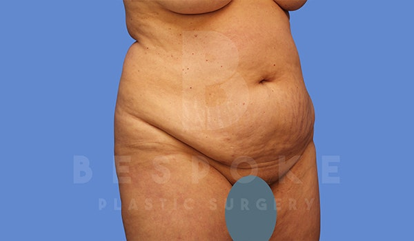 Tummy Tuck Gallery - Patient 5776275 - Image 3
