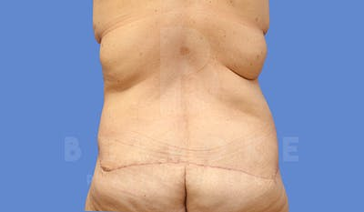 Tummy Tuck Gallery - Patient 5776274 - Image 6