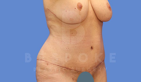 Tummy Tuck Gallery - Patient 5776275 - Image 4