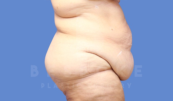 Tummy Tuck Gallery - Patient 5776274 - Image 7
