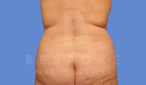 Tummy Tuck Gallery - Patient 5776275 - Image 5