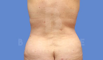 Tummy Tuck Gallery - Patient 5776275 - Image 6