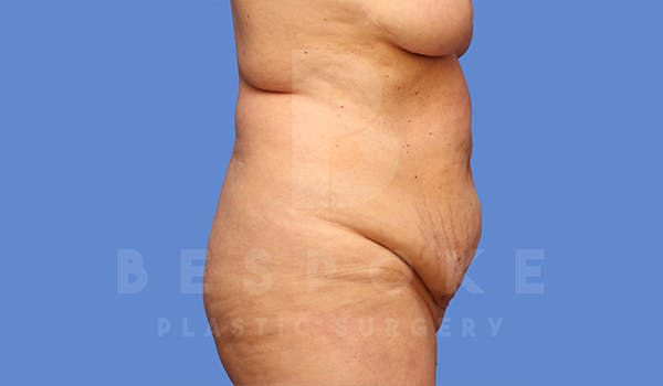 Tummy Tuck Gallery - Patient 5776275 - Image 7