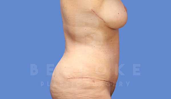 Tummy Tuck Gallery - Patient 5776275 - Image 8