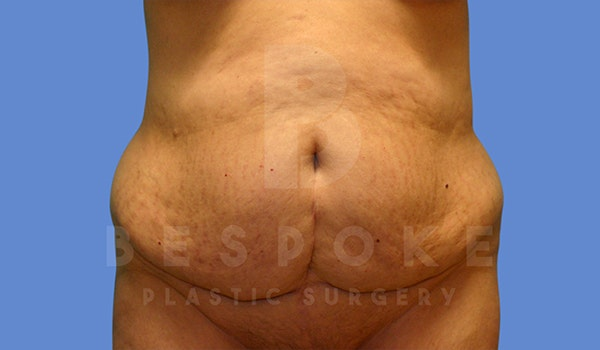 Tummy Tuck Gallery - Patient 5776277 - Image 1