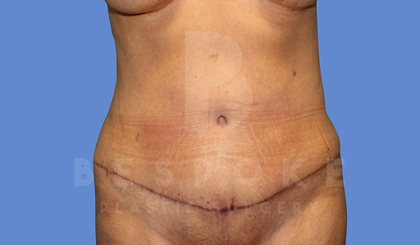 Tummy Tuck Gallery - Patient 5776277 - Image 2