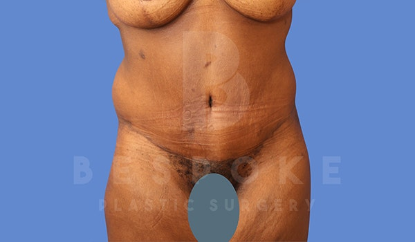 Tummy Tuck Gallery - Patient 5776278 - Image 2